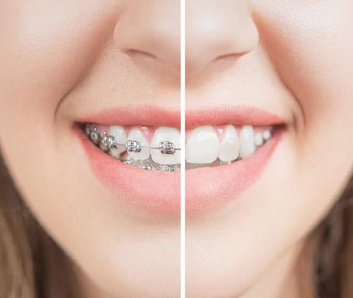 9 Ways Braces Improve Your Oral Health