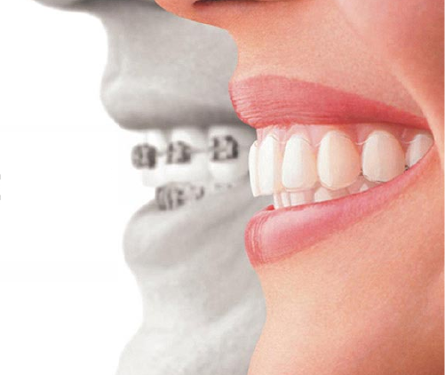 CLEAR ALIGNERS/ INVISALIGN in ahmedabad